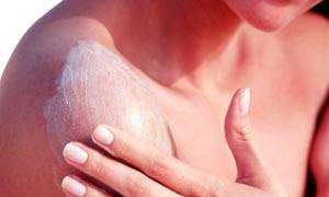 Quemaduras en la piel
